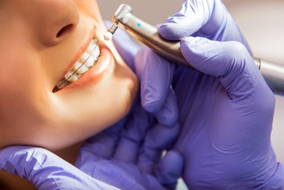 Ortodoncia Clínica Dental Calas Cádiz