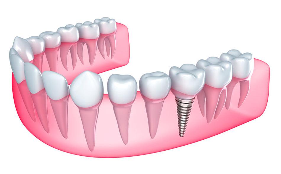 Clínica Dental Calas Cádiz Implantes Dentales